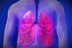 Astmapatienten betere ademhalingsfunctie na overstap roken naar e-sigaret