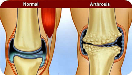 Artrose heup en knie oefentherapie 2018 in de basisverzekering