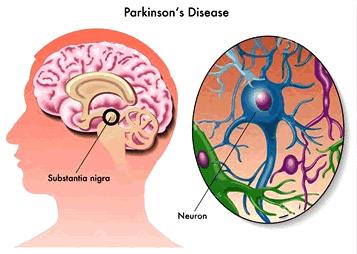 Ziekte van Parkinson begint in de darmen, voeding kan invloed hebben